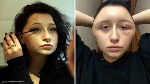 تشوه رأس ووجه سيدة فرنسية بعد استخدام صبغة شعر