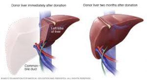 الشروع في إنشاء مركز لزراعة الكبد في السودان